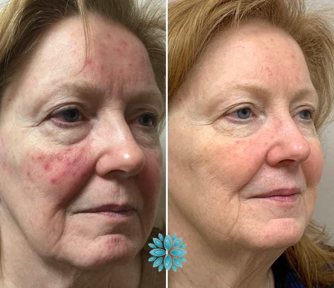 Skin Laser Treatment Before & After