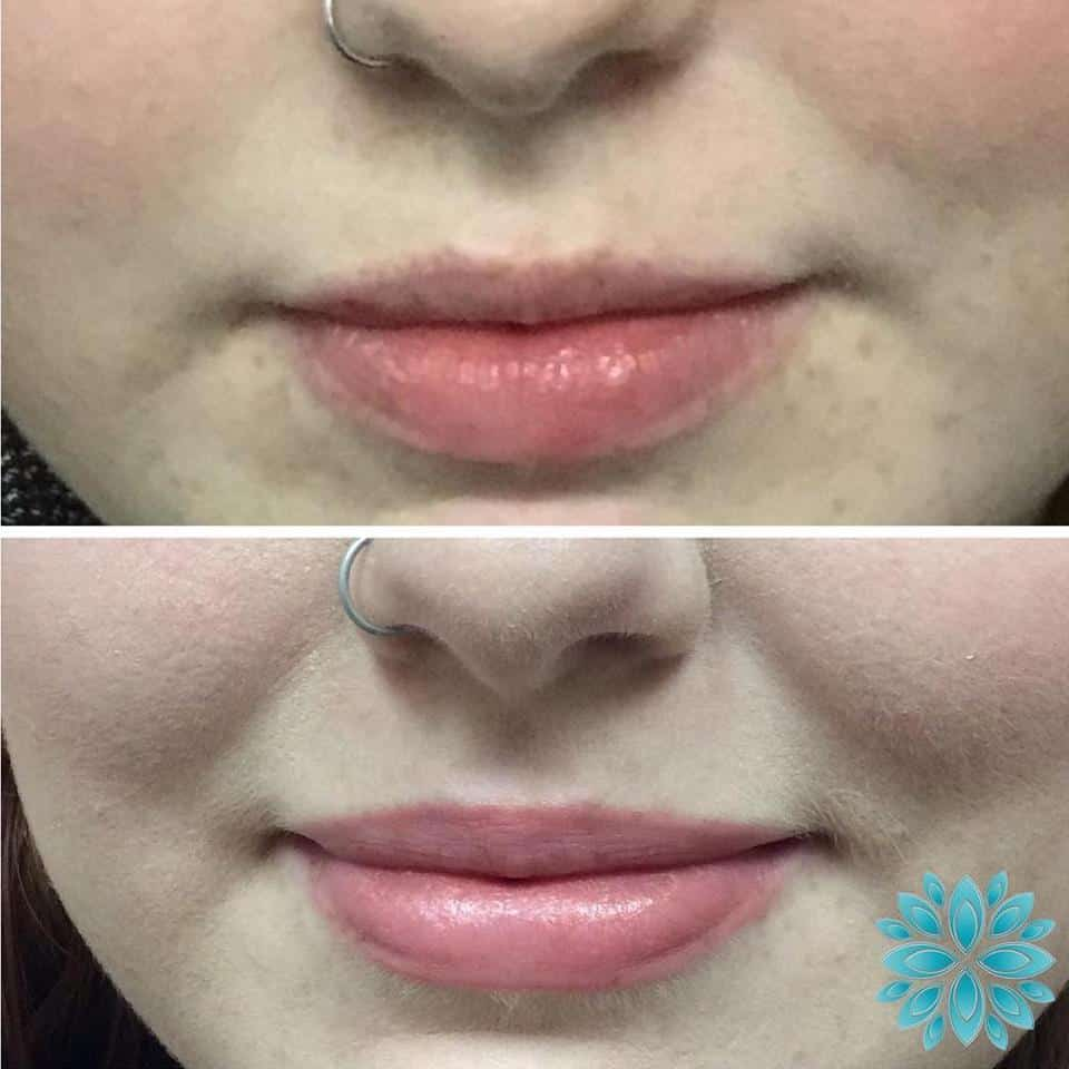 Botox Lips Before and After