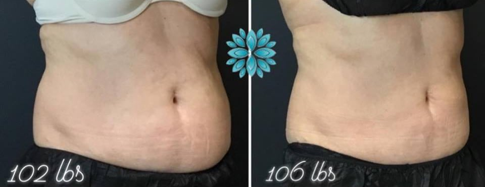 Coolsculpting before and after belly