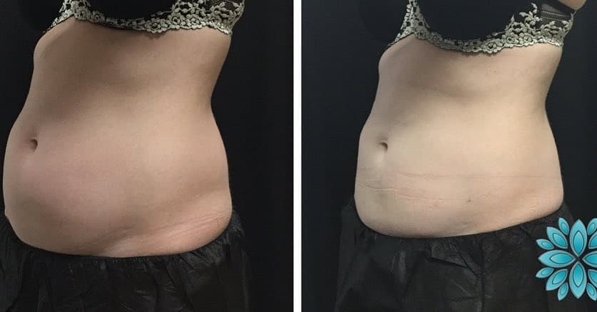 Coolsculpting, Before and After