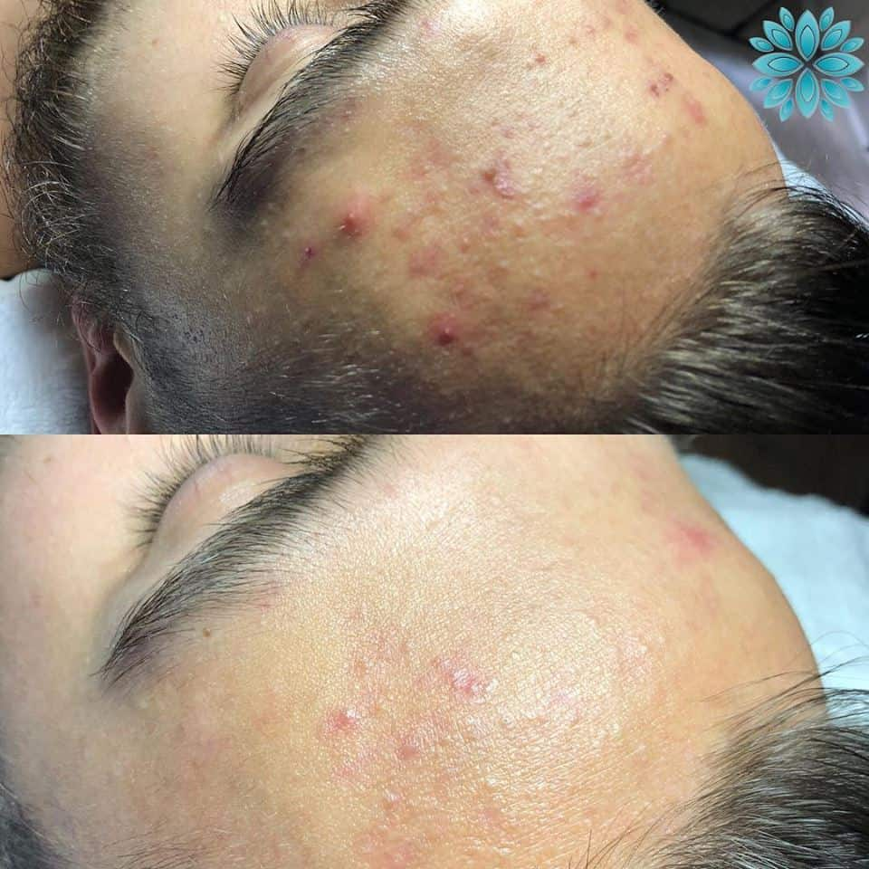 HydraFacial Forehead Before and After