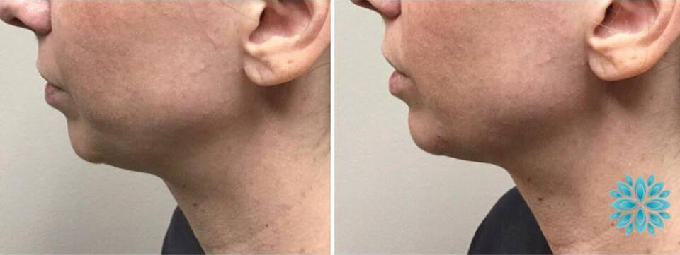 Juvederm Before and After Chin