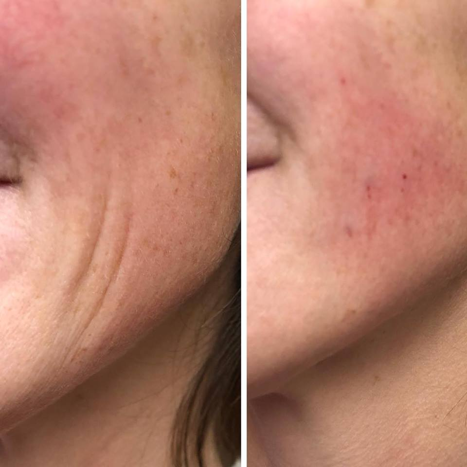 Juvederm Cheek Before and After