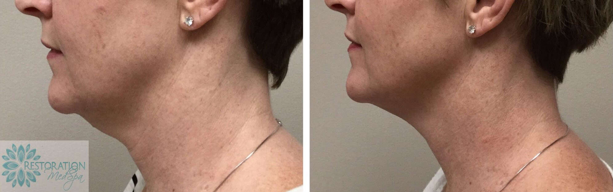 Kybella Neck Before and After