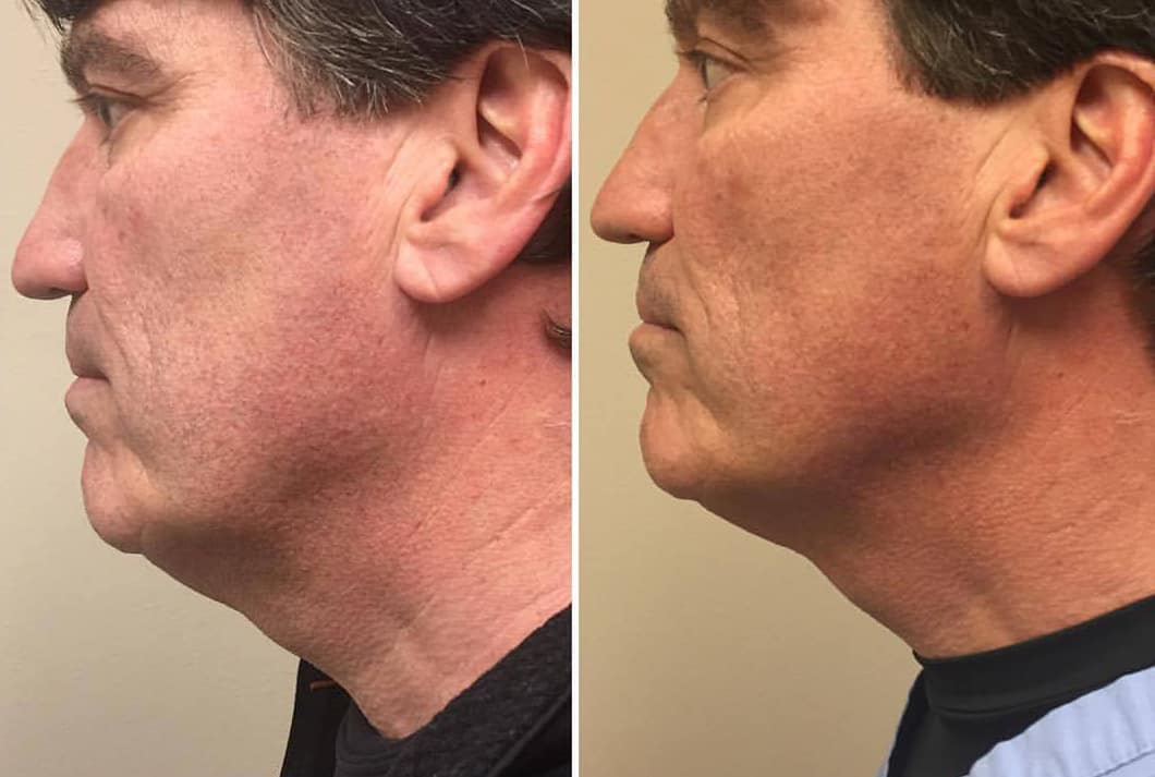 Kybella For Men Before and After
