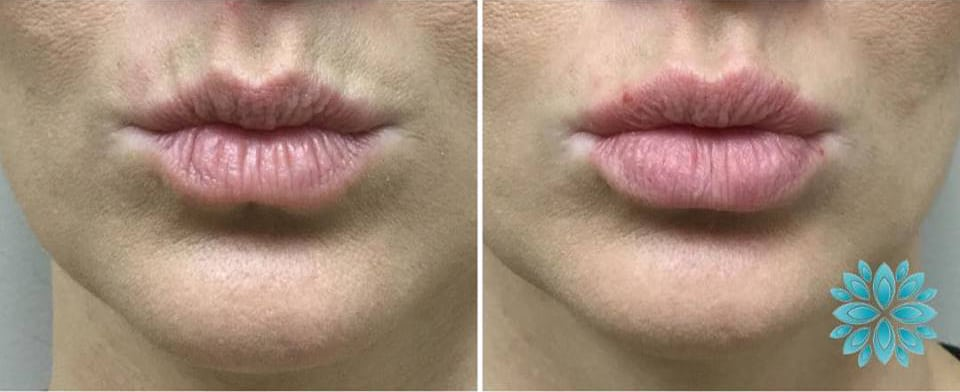Volbella Lips, Before and After
