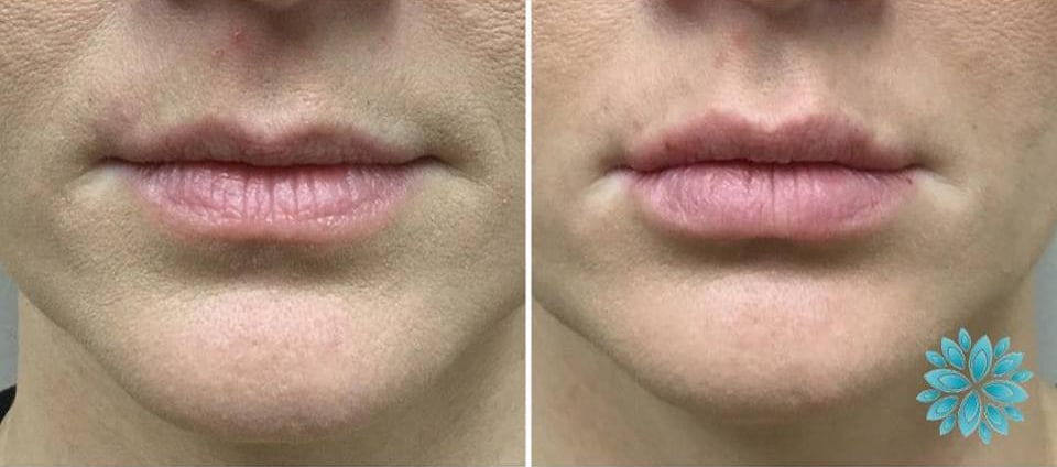 Volbella Lip Treatment Before and After