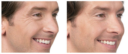 Botox male before and after