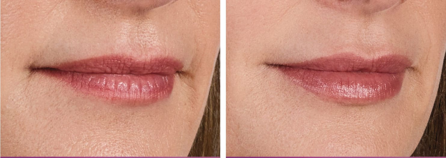 Juvederm Vobella Before & After