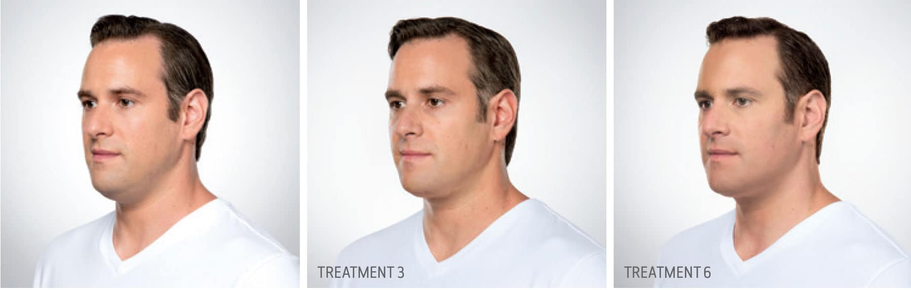 Kybella Treatment for Men