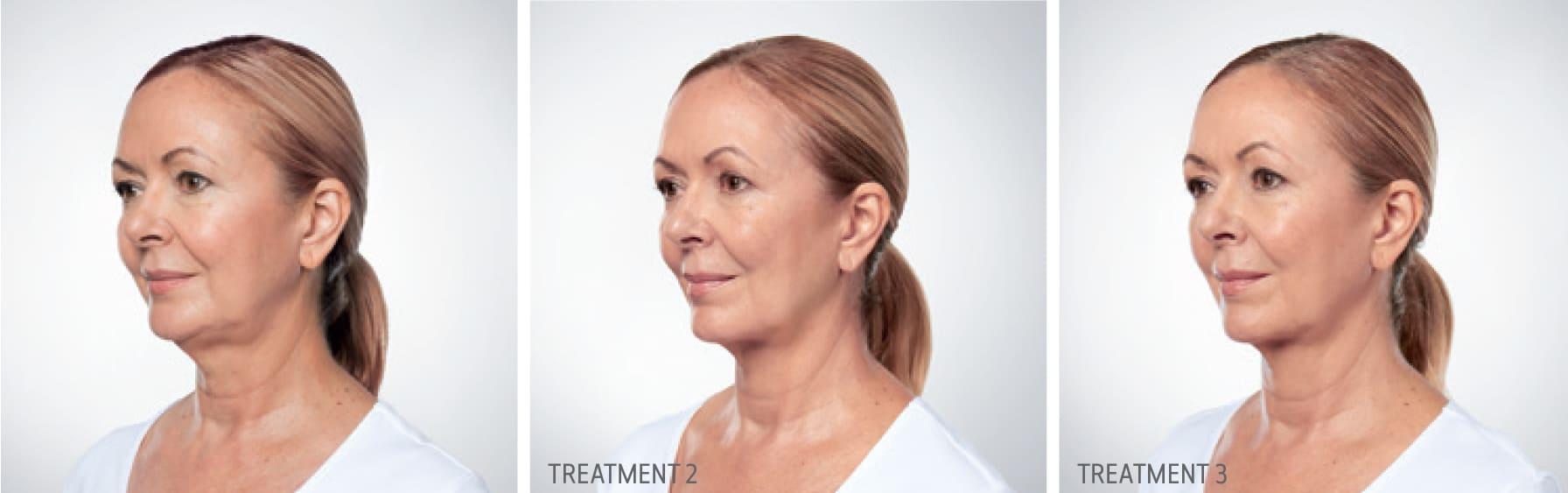 Kybella Treatment Progression 2
