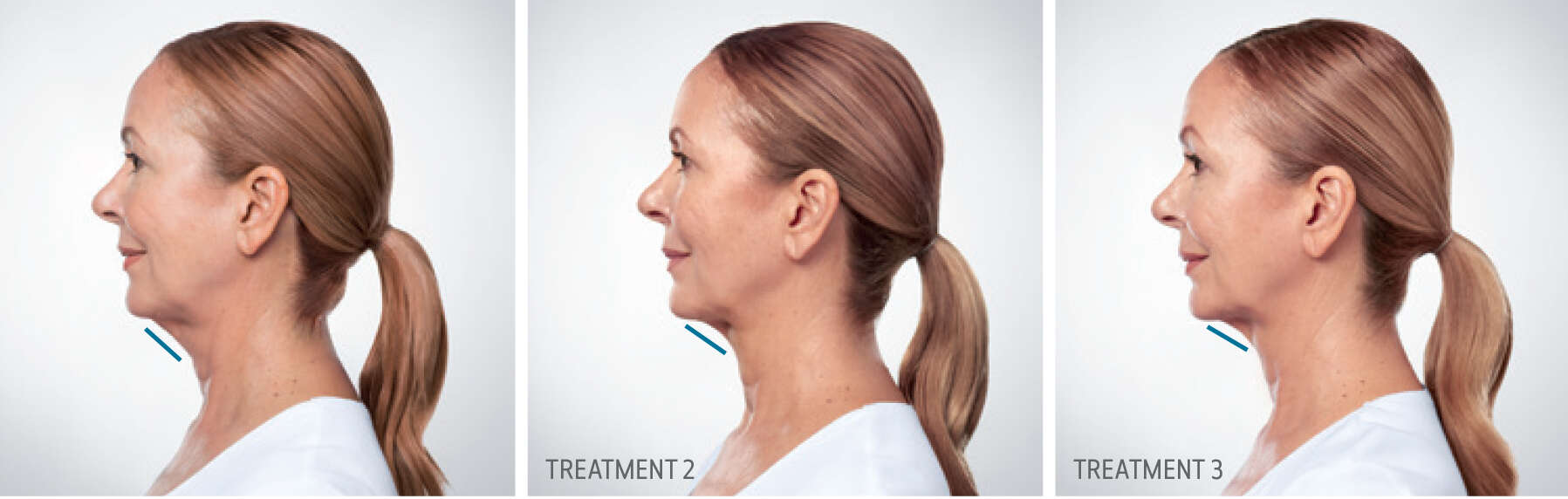 Kybella Treatment Progression