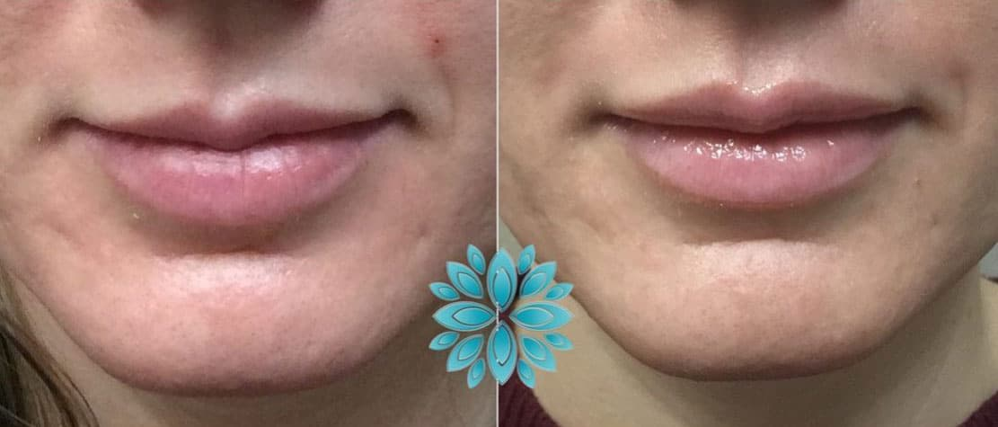 Botox Lips, Before and After