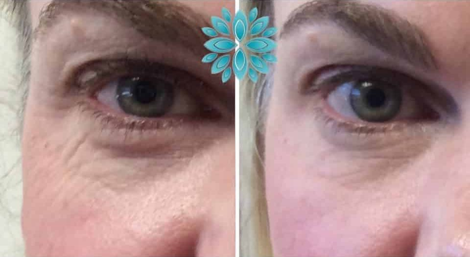 Botox Under Eye, Before and After