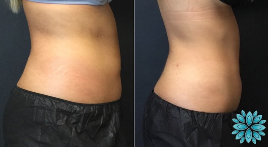 Coolsculpting Abs, Before and After