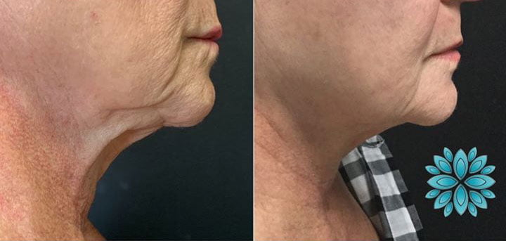 Ultherapy, Before and After
